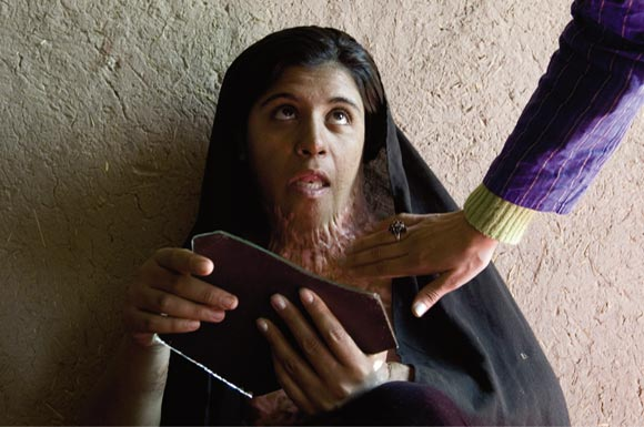 Afghan woman with burns on neck looks at herself in broken mirror