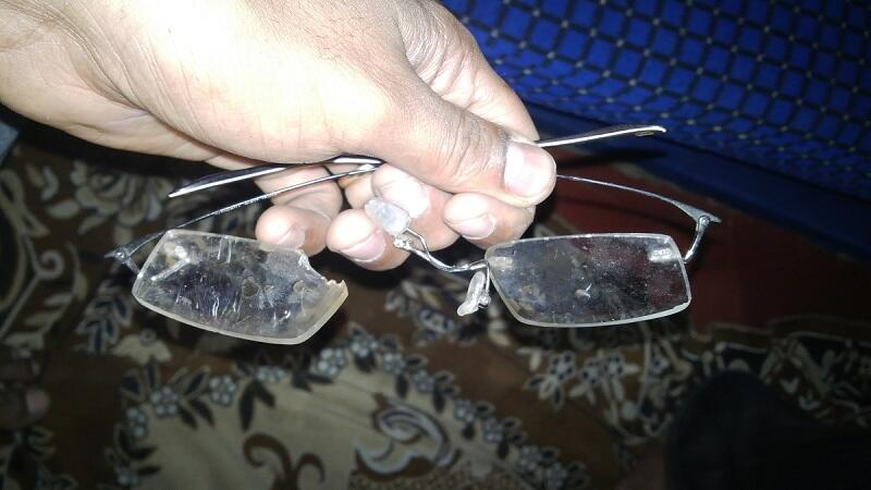 Ankit Lal's spectacles broken in assault
