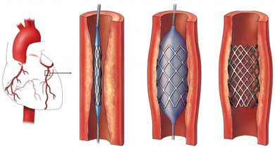 coronary stent 2