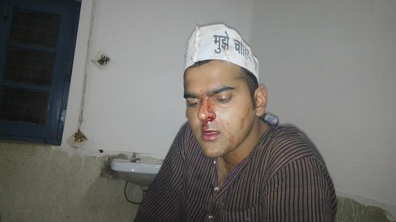 Nandan's nose broken in attack by BJP thugs
