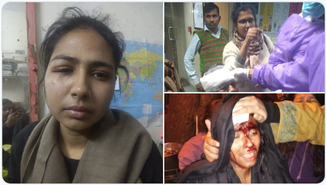 injured students and faculty at JNU